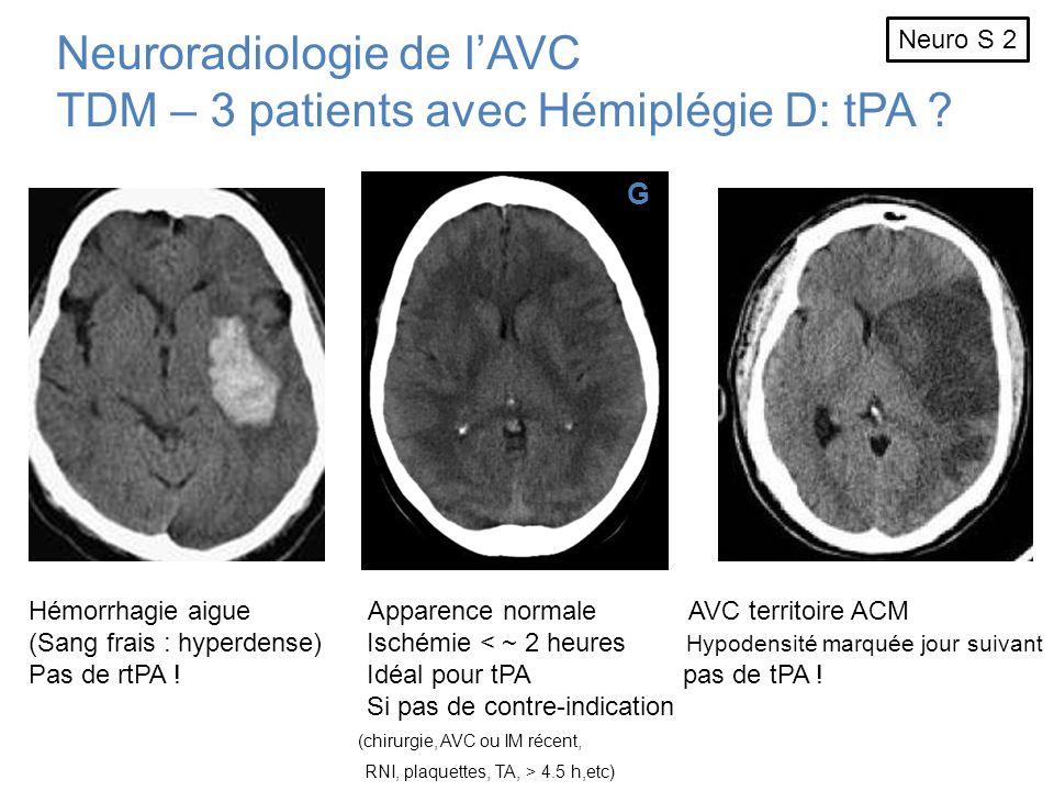 Neuroradiologie de lAVC TDM – 3 patients avec Hémiplégie D: tPA ? G Hémorrhagie aigue Apparence normale AVC territoire ACM (Sang frais : hyperdense) I