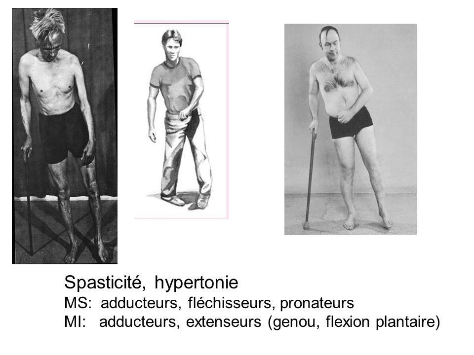 Spasticité, hypertonie MS: adducteurs, fléchisseurs, pronateurs MI: adducteurs, extenseurs (genou, flexion plantaire)