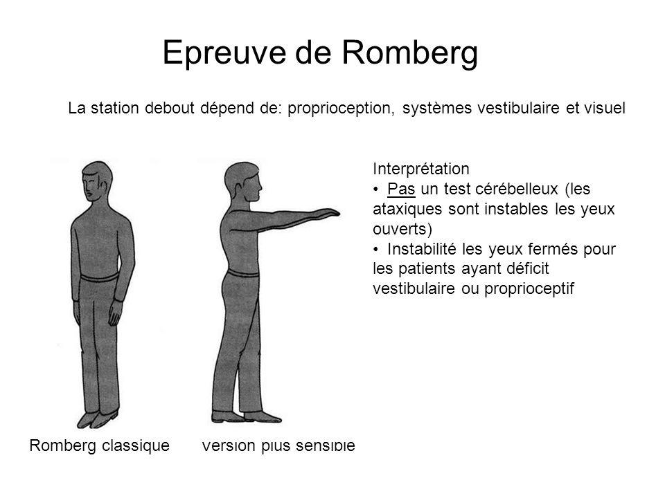 Epreuve de Romberg La station debout dépend de: proprioception, systèmes vestibulaire et visuel Romberg classiqueVersion plus sensible Interprétation