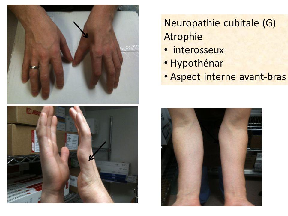 Neuropathie cubitale (G) Atrophie interosseux Hypothénar Aspect interne avant-bras