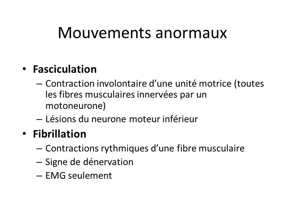 Mouvements anormaux Fasciculation – Contraction involontaire dune unité motrice (toutes les fibres musculaires innervées par un motoneurone) – Lésions du neurone moteur inférieur Fibrillation – Contractions rythmiques dune fibre musculaire – Signe de dénervation – EMG seulement