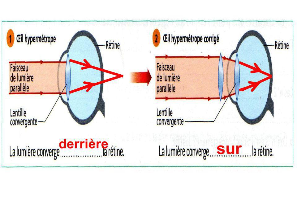 convergent divergente concentrée rétine