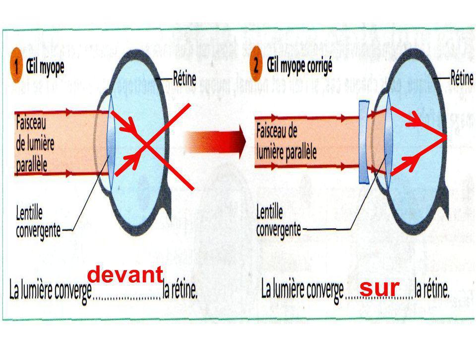 c. Pour corriger un oeil myope, on place une lentille divergente (lunettes) devant loeil.