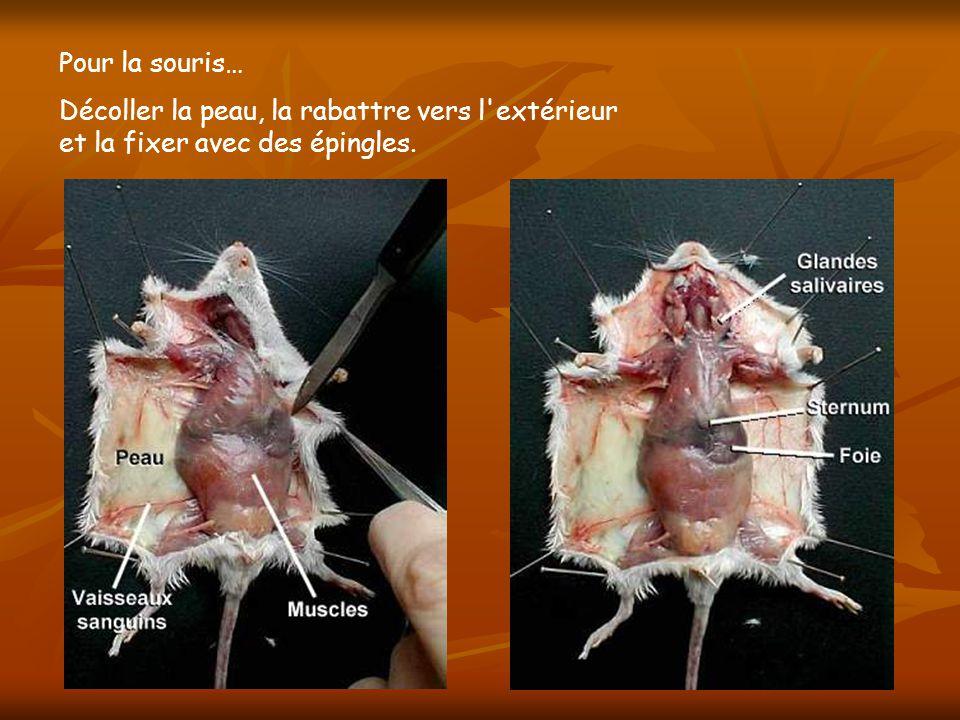 Faire une boutonnière dans la paroi musculaire de l abdomen Soulever et inciser la paroi musculaire de l abdomen