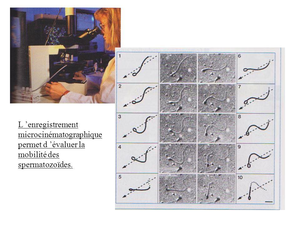 L enregistrement microcinématographique permet d évaluer la mobilité des spermatozoïdes.