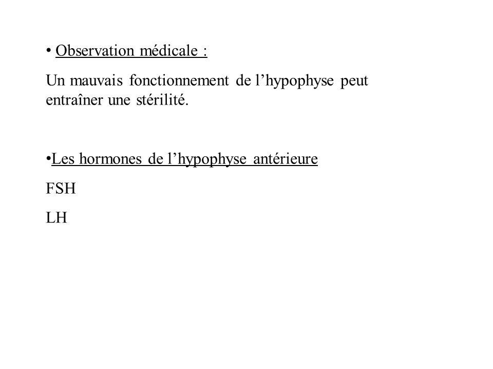 Observation médicale : Un mauvais fonctionnement de lhypophyse peut entraîner une stérilité.