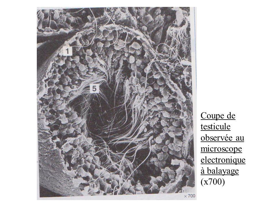 Coupe de testicule observée au microscope electronique à balayage (x700)