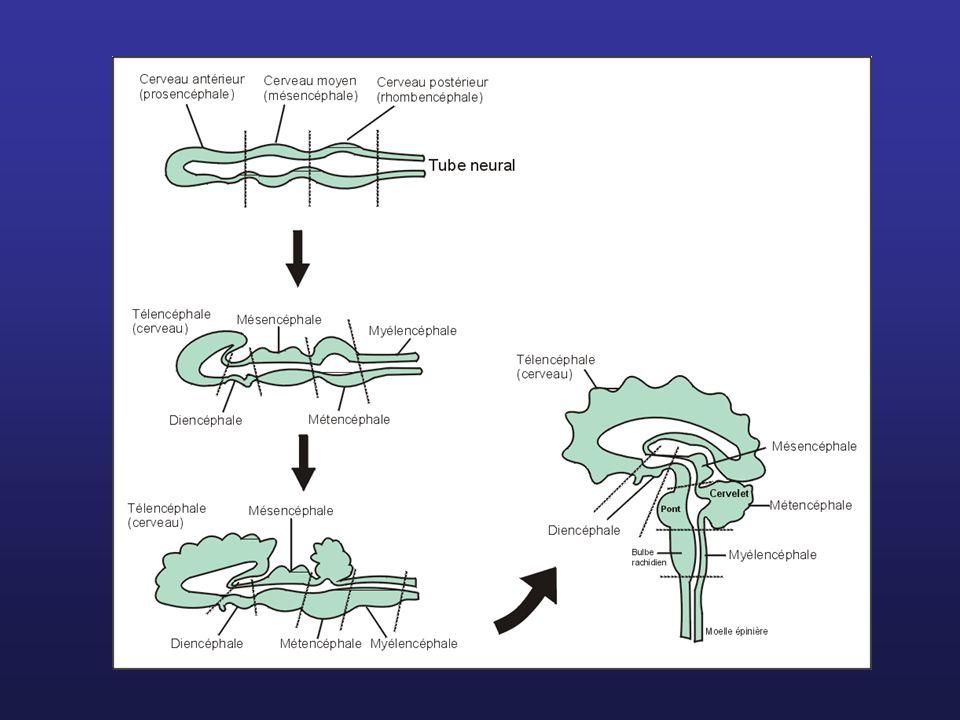 Bulbe rachidien (myélencéphale) Mésencéphale Pont (fait partie du métencéphale)
