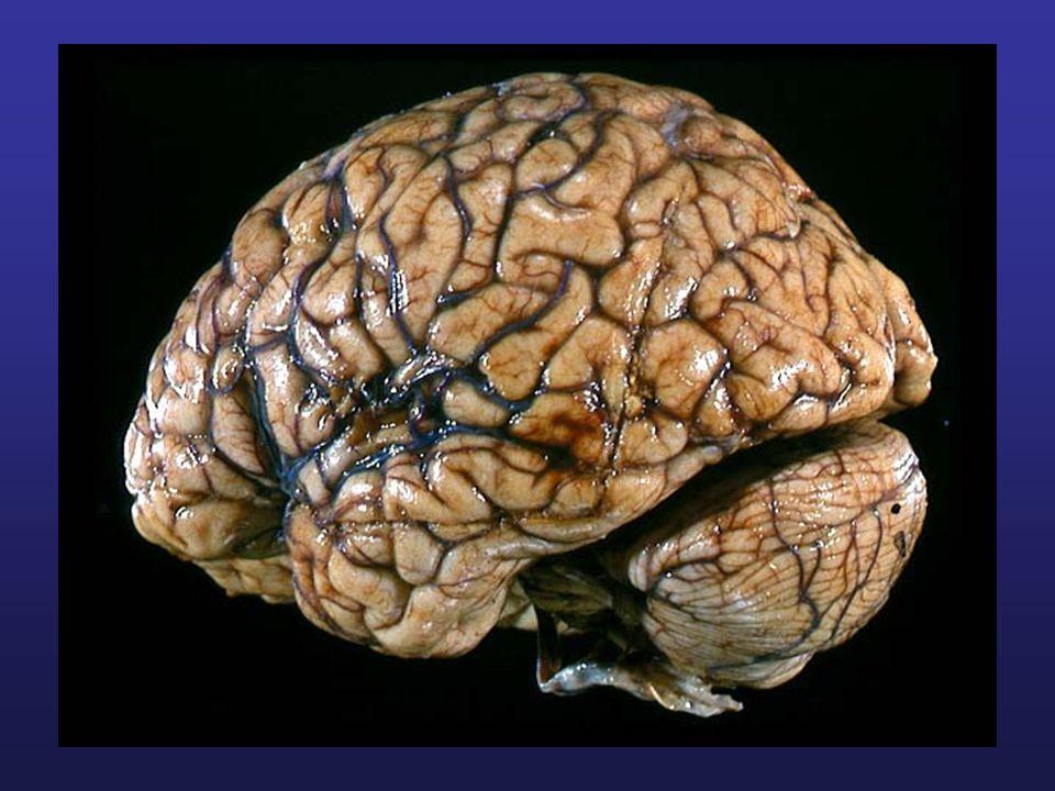 Formation réticulée Traverse tout le tronc cérébral –Plusieurs petits noyaux dispersés.