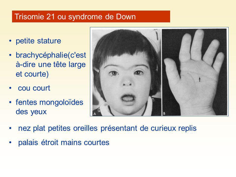 petite stature brachycéphalie(c'est à-dire une tête large et courte) cou court fentes mongoloïdes des yeux Trisomie 21 ou syndrome de Down nez plat pe