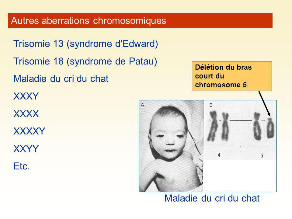 Autres aberrations chromosomiques Trisomie 13 (syndrome dEdward) Trisomie 18 (syndrome de Patau) Maladie du cri du chat XXXY XXXX XXXXY XXYY Etc. Mala