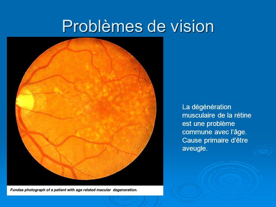 Problèmes de vision La dégénération musculaire de la rétine est une problème commune avec lâge. Cause primaire dêtre aveugle.