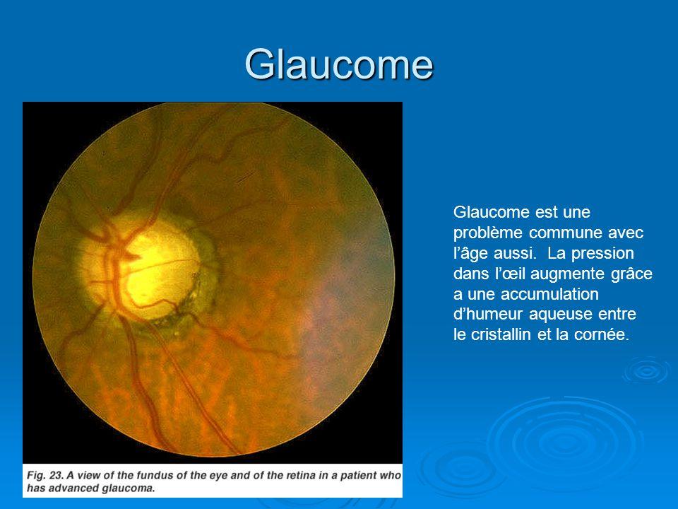 Glaucome Glaucome est une problème commune avec lâge aussi. La pression dans lœil augmente grâce a une accumulation dhumeur aqueuse entre le cristalli