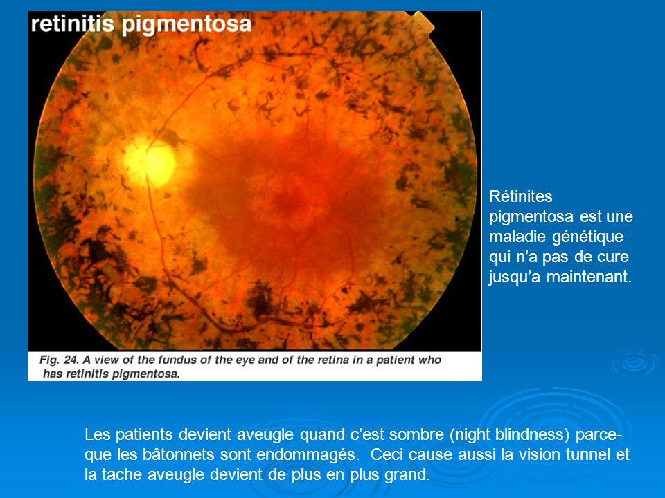 Rétinites pigmentosa est une maladie génétique qui na pas de cure jusqua maintenant. Les patients devient aveugle quand cest sombre (night blindness)