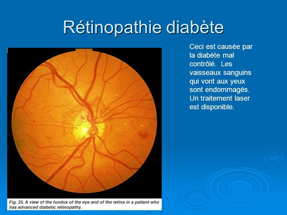 Rétinopathie diabète Ceci est causée par la diabète mal contrôlé. Les vaisseaux sanguins qui vont aux yeux sont endommagés. Un traitement laser est di