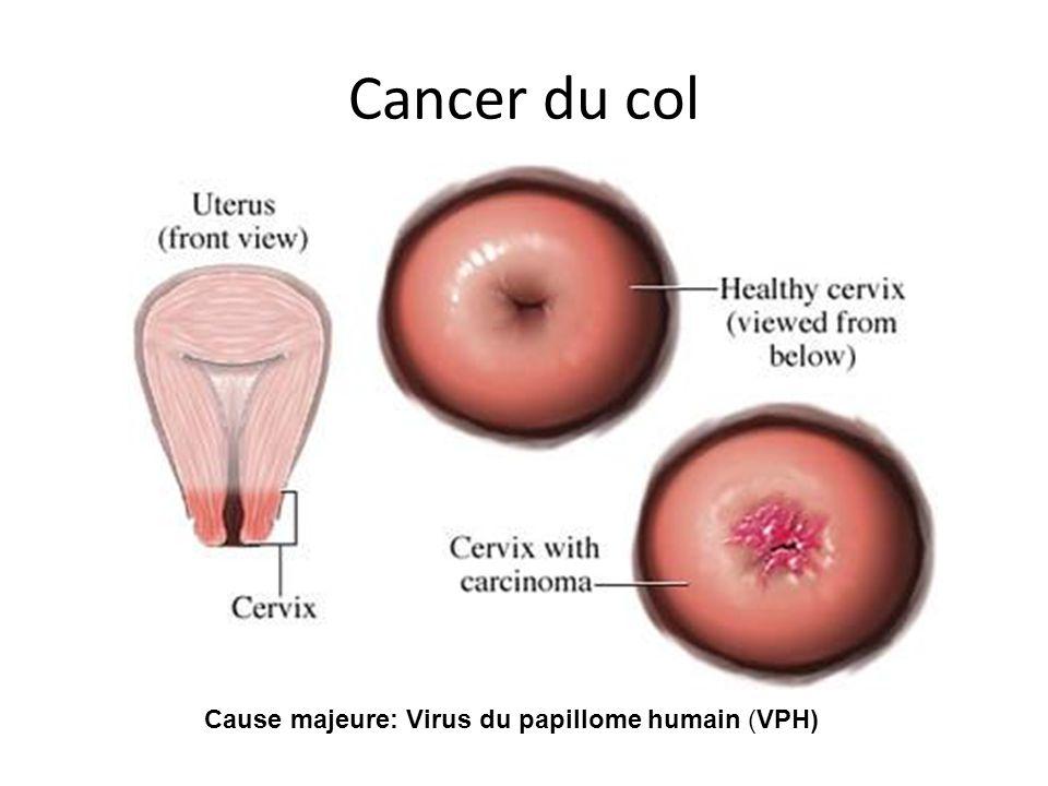 Cancer du col Cause majeure: Virus du papillome humain (VPH)