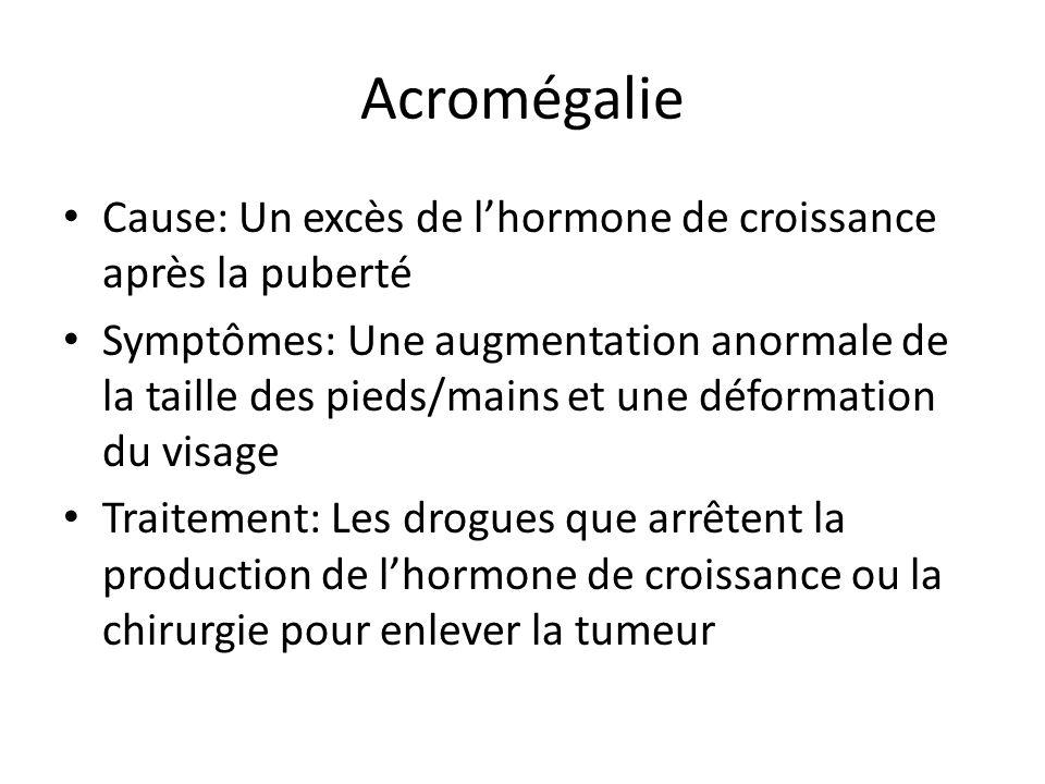Acromégalie Cause: Un excès de lhormone de croissance après la puberté Symptômes: Une augmentation anormale de la taille des pieds/mains et une déform