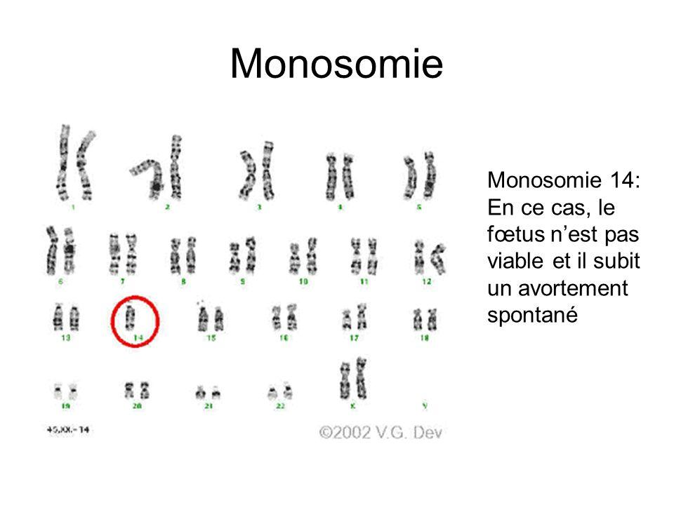 Monosomie Monosomie 14: En ce cas, le fœtus nest pas viable et il subit un avortement spontané