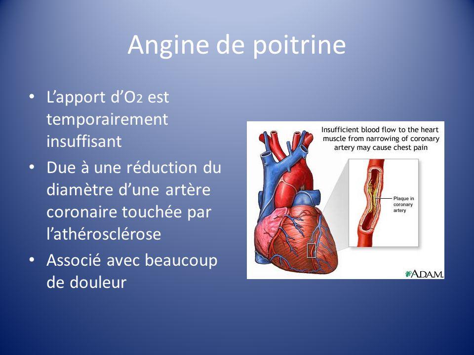 Infarctus du myocarde Aussi appelé «crise cardiaque» Due à lathérosclérose et à la formation consécutive dun caillot Le caillot bloque la circulation, ce qui cause une manque dO 2 Sans O 2, il y a la mort du tissu cardiaque