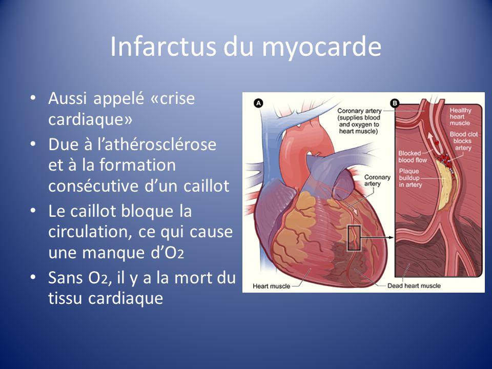 Infarctus du myocarde Aussi appelé «crise cardiaque» Due à lathérosclérose et à la formation consécutive dun caillot Le caillot bloque la circulation,