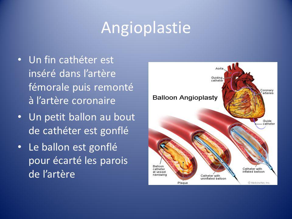 Angioplastie Un fin cathéter est inséré dans lartère fémorale puis remonté à lartère coronaire Un petit ballon au bout de cathéter est gonflé Le ballo
