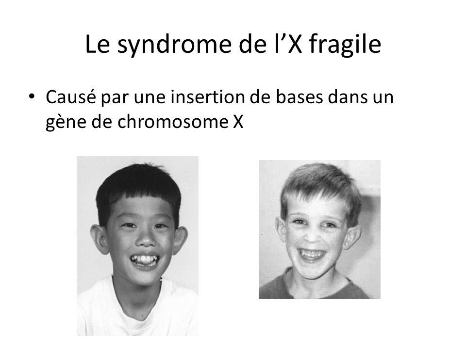 Le syndrome de lX fragile Causé par une insertion de bases dans un gène de chromosome X