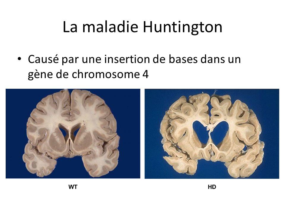 La maladie Huntington Causé par une insertion de bases dans un gène de chromosome 4