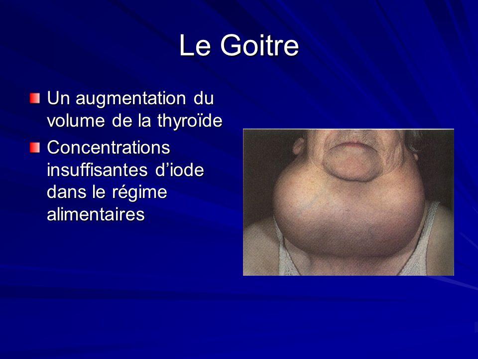 Le Goitre Un augmentation du volume de la thyroïde Concentrations insuffisantes diode dans le régime alimentaires
