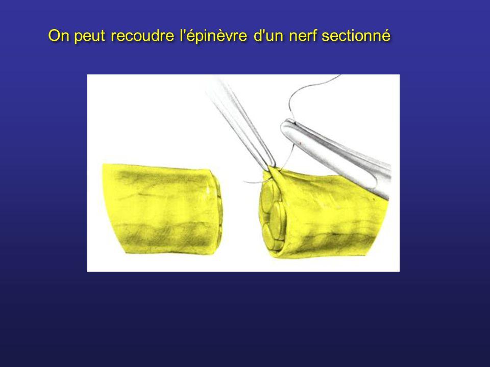 On peut recoudre l'épinèvre d'un nerf sectionné