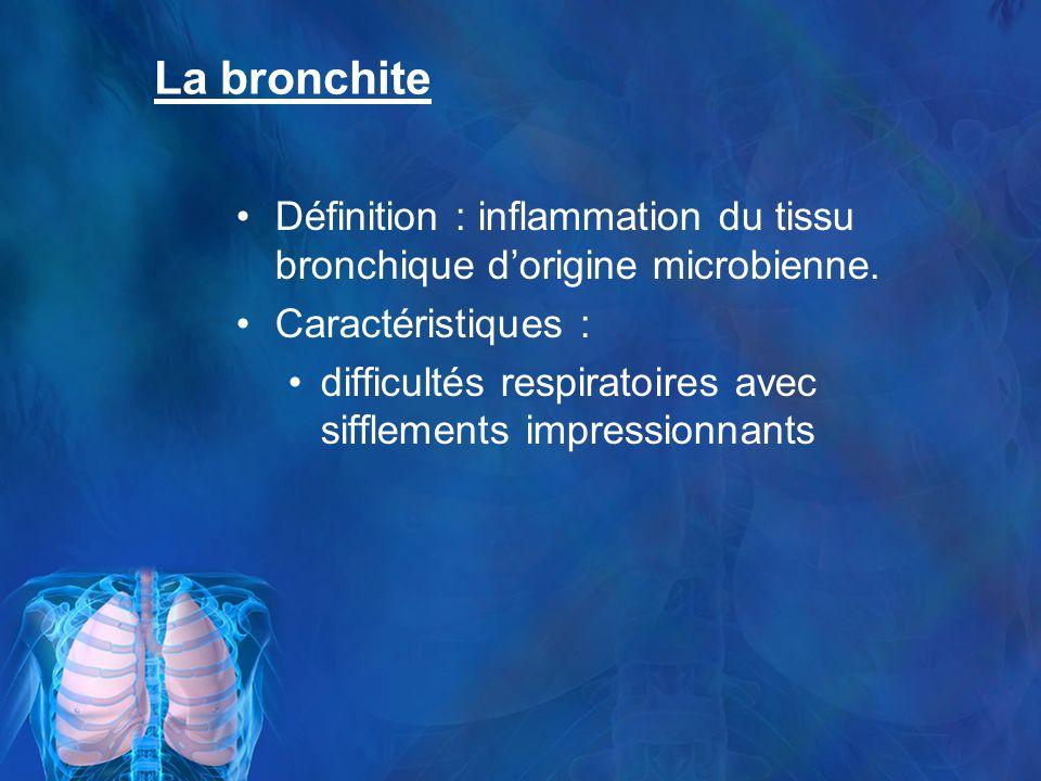La bronchite Définition : inflammation du tissu bronchique dorigine microbienne.