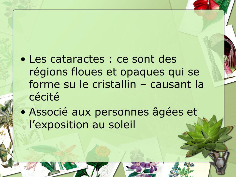 Les cataractes : ce sont des régions floues et opaques qui se forme su le cristallin – causant la cécité Associé aux personnes âgées et lexposition au