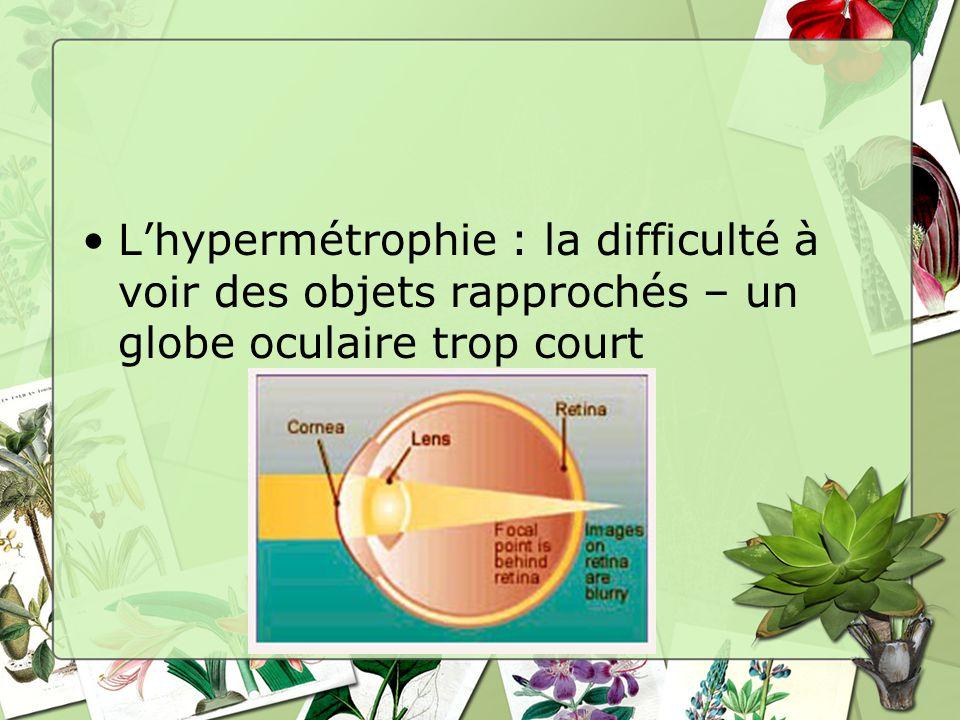 Lhypermétrophie : la difficulté à voir des objets rapprochés – un globe oculaire trop court