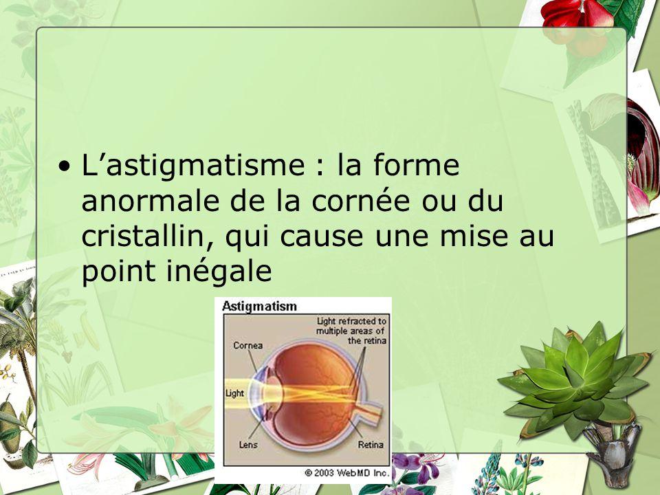 Lastigmatisme : la forme anormale de la cornée ou du cristallin, qui cause une mise au point inégale
