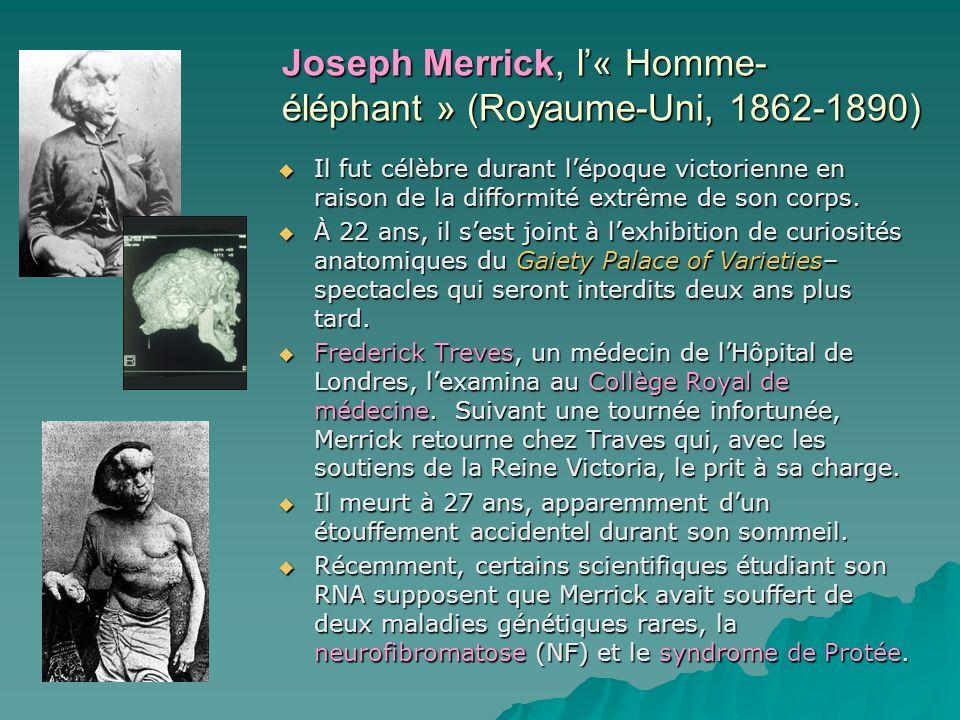 Joseph Merrick, l« Homme- éléphant » (Royaume-Uni, 1862-1890) Il fut célèbre durant lépoque victorienne en raison de la difformité extrême de son corp