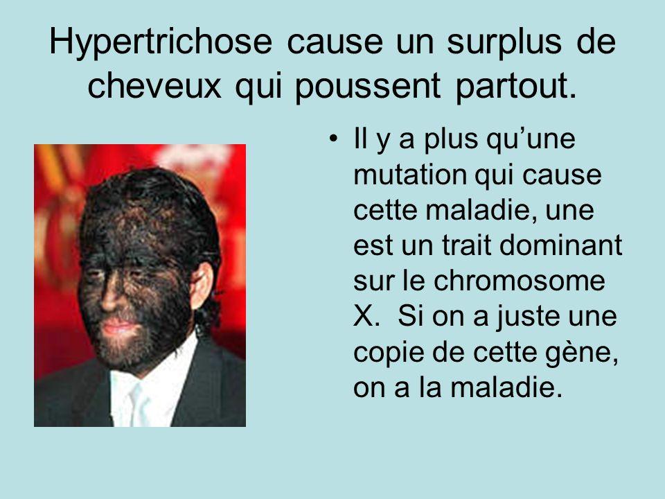 Hypertrichose cause un surplus de cheveux qui poussent partout. Il y a plus quune mutation qui cause cette maladie, une est un trait dominant sur le c