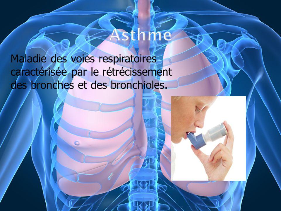 Maladie des voies respiratoires caractérisée par le rétrécissement des bronches et des bronchioles.