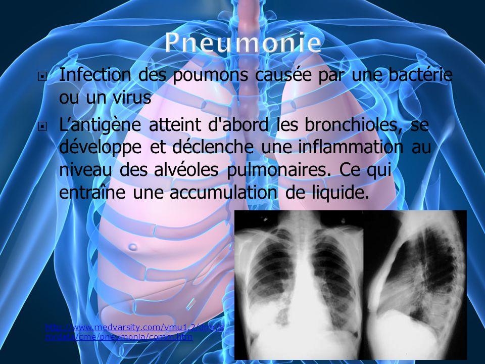 Infection des poumons causée par une bactérie ou un virus Lantigène atteint d'abord les bronchioles, se développe et déclenche une inflammation au niv