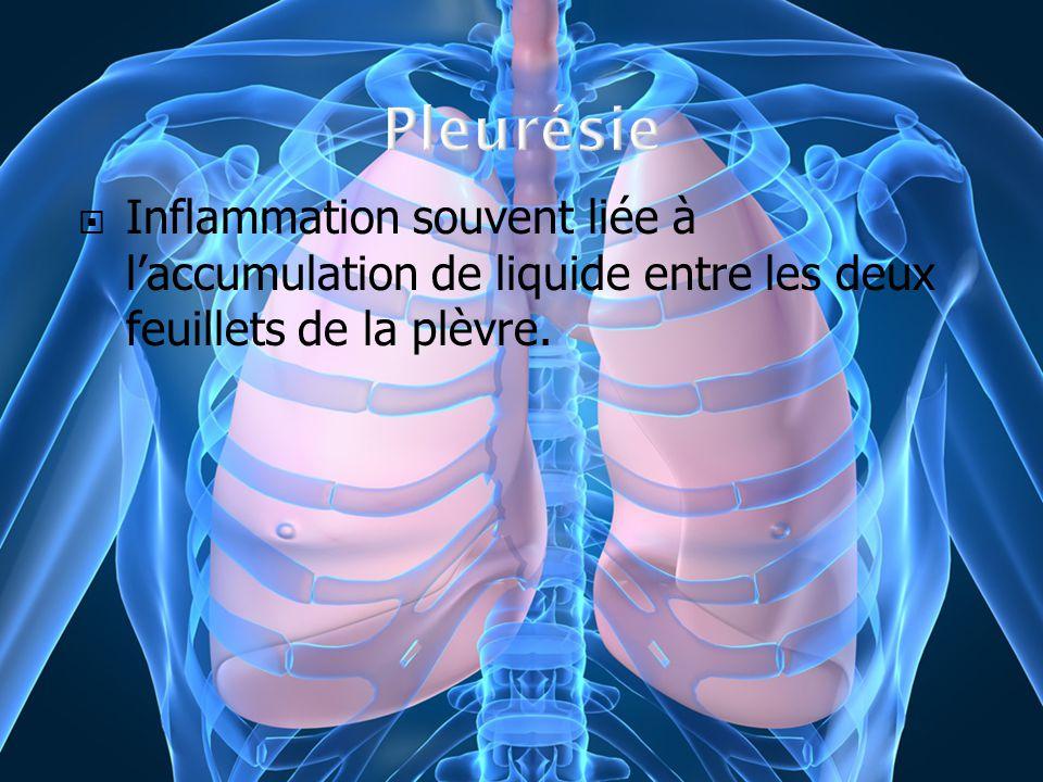 Inflammation souvent liée à laccumulation de liquide entre les deux feuillets de la plèvre.