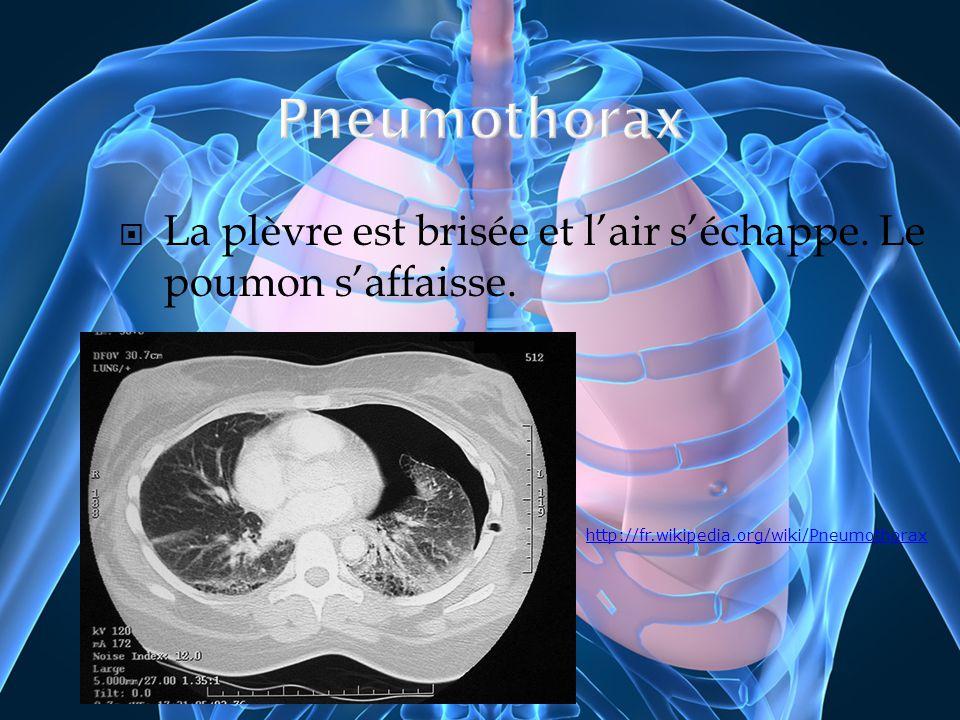 La plèvre est brisée et lair séchappe. Le poumon saffaisse. http://fr.wikipedia.org/wiki/Pneumothorax
