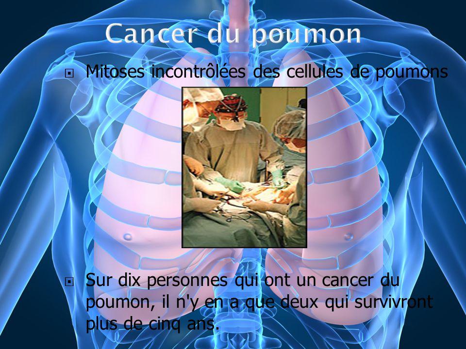 Mitoses incontrôlées des cellules de poumons Sur dix personnes qui ont un cancer du poumon, il n'y en a que deux qui survivront plus de cinq ans.