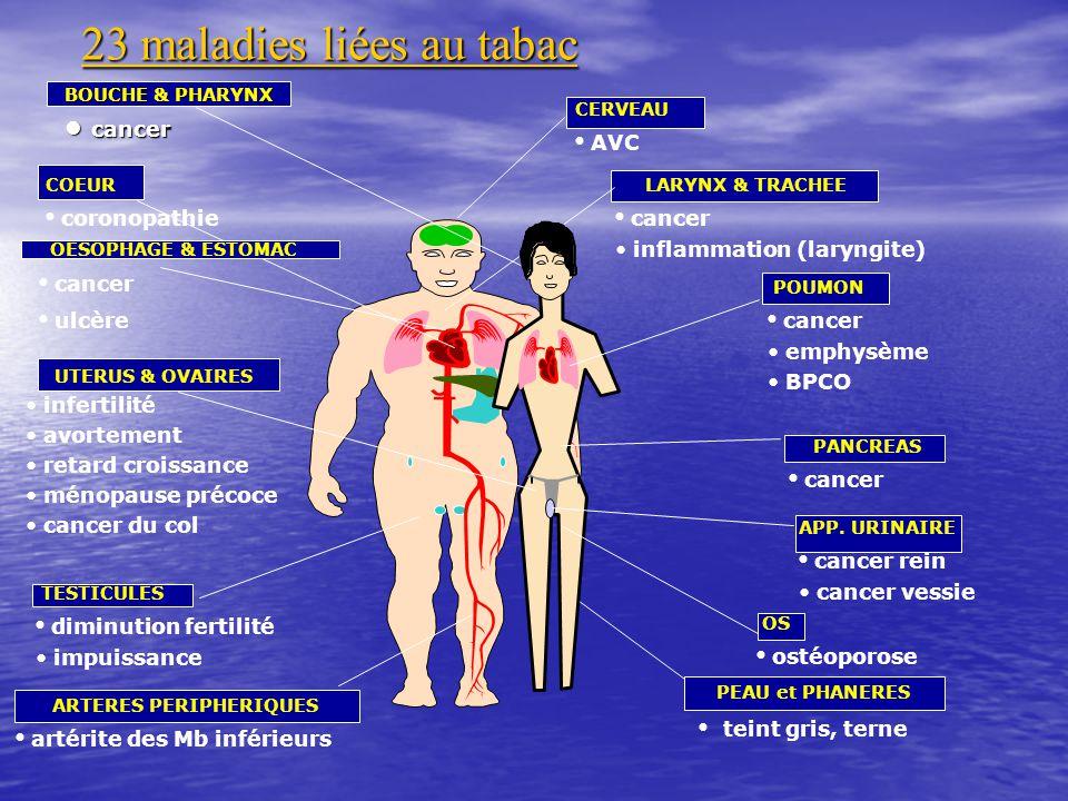 23 maladies liées au tabac BOUCHE & PHARYNX cancer cancer CERVEAU AVC LARYNX & TRACHEE cancer inflammation (laryngite) POUMON cancer emphysème BPCO PA