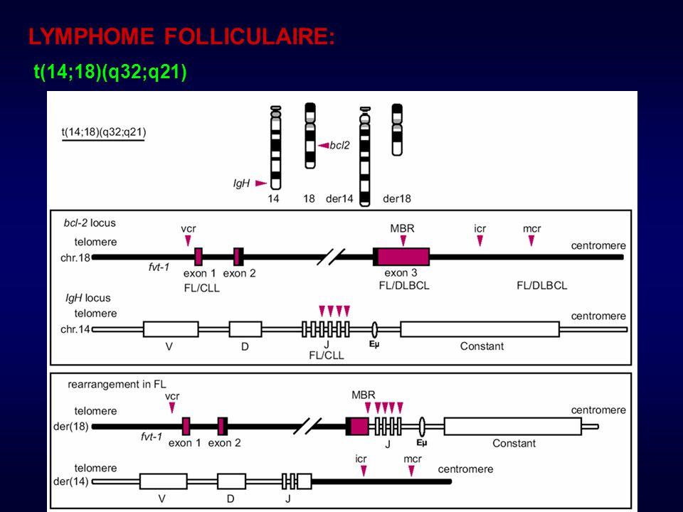 LYMPHOME FOLLICULAIRE: t(14;18)(q32;q21)