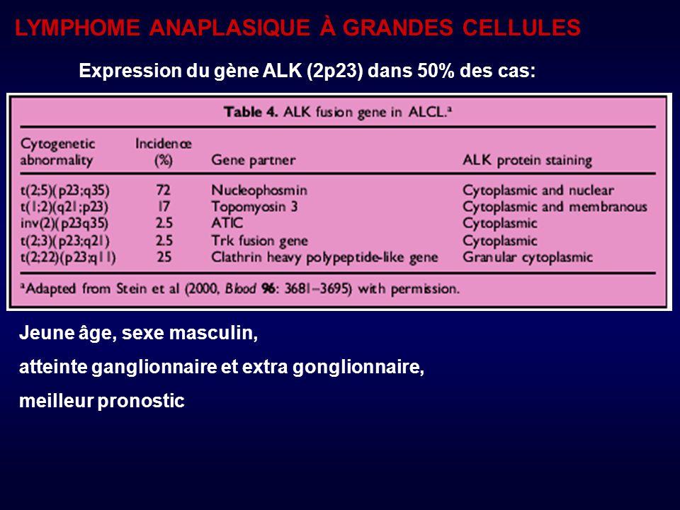 LYMPHOME ANAPLASIQUE À GRANDES CELLULES Expression du gène ALK (2p23) dans 50% des cas: Jeune âge, sexe masculin, atteinte ganglionnaire et extra gonglionnaire, meilleur pronostic