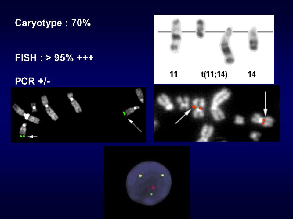 Sur expression de la protéine Cycline DI Immunohistochimie sur coupe paraffinée Anomalies additionnelles: Délétion 13q, 6q, 1p, 11q … Duplication 3q, 8q, 7p, 18q … Amplification des gènes : CDK4 (12q), DMI-1 (10p), c-MYC (8q) et BCL2 (18q) morphologie blastoide.