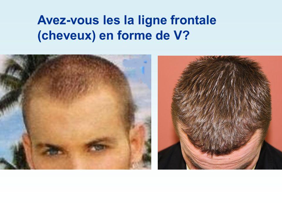 Avez-vous les la ligne frontale (cheveux) en forme de V?