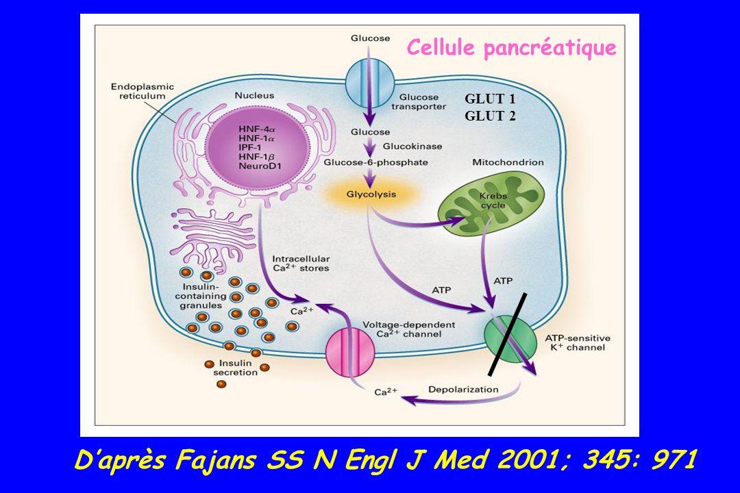Diabète de type 1 = AUTO-IMMUN anticorps anti-ilôts de Langherans anticorps anti-GAD (décarboxylase de lacide glutamique) anticorps anti- IA2 (Insulinoma associated protein 2 = tyrosine phosphatase IA-2 ) anticorps anti-insuline