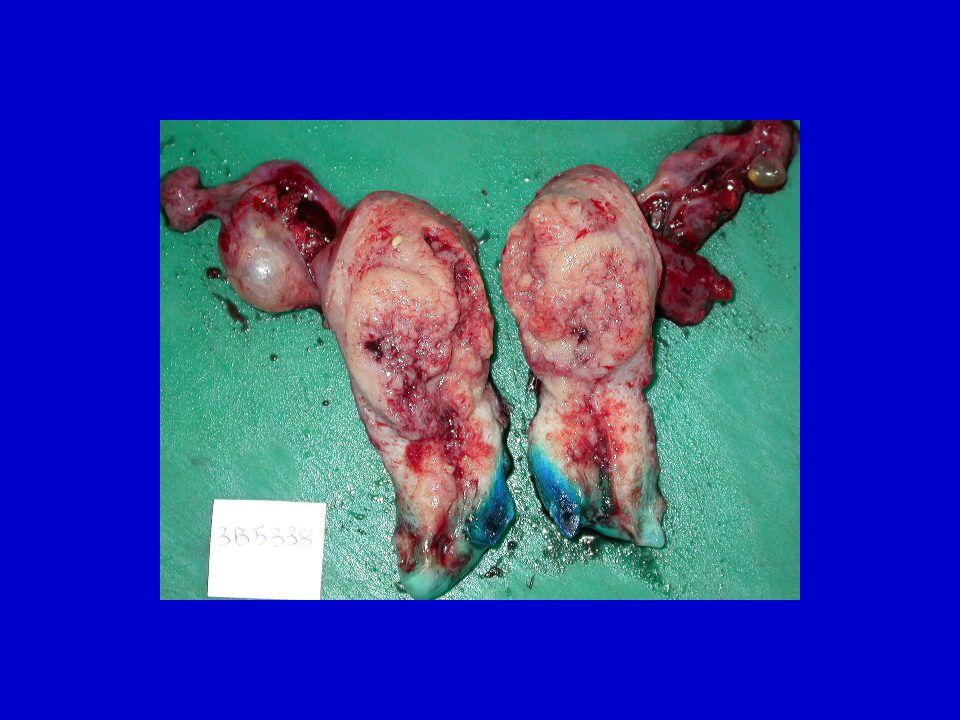 Cancer de lendomètre Principes du TRAITEMENT CHIRURGICAL Points discutés Elargissement au paramètre (atteinte clinique du col) Curage lombo aortique (si N+ pelvien, systématique pour certains) Voie dabord: laparotomie ou association lymphadénectomie pelvienne coelioscopique et hystérectomie vaginale (sans morcellement)