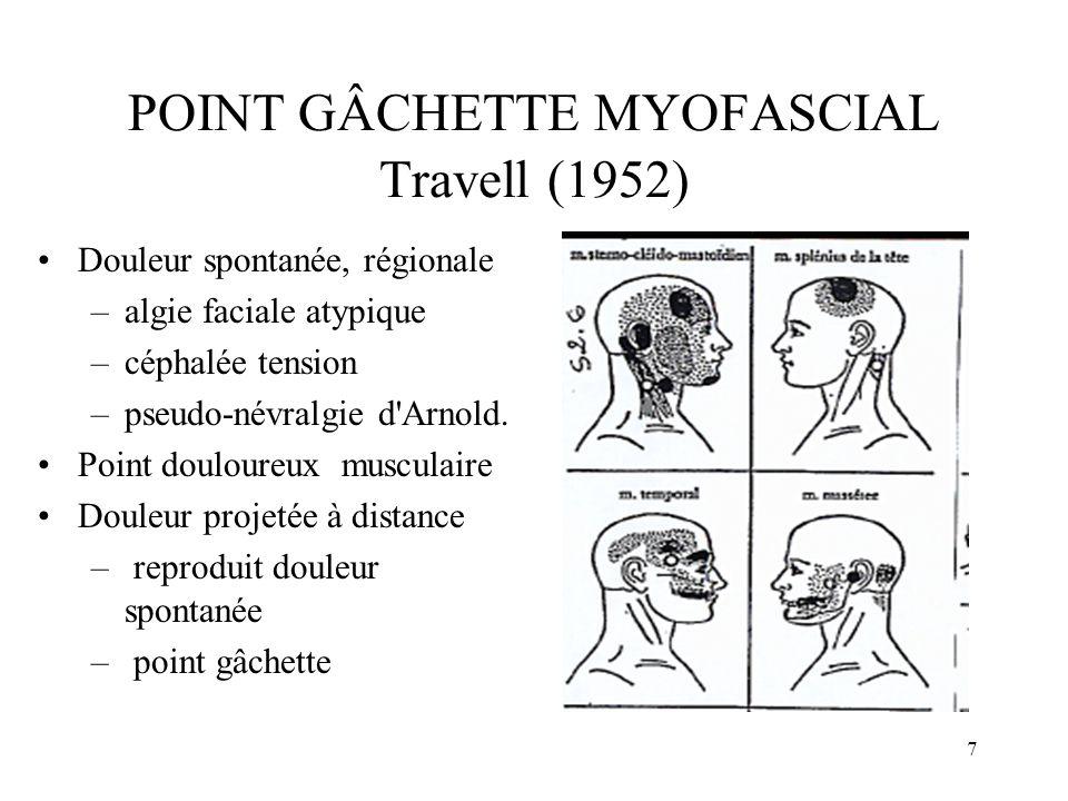 8 POINT GÂCHETTE MYOFASCIAL Travell (1952) Douleur spontanée, régionale –trajet pseudo-radiculaire.