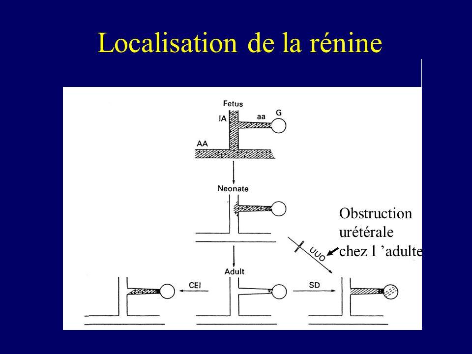 Localisation de la rénine Obstruction urétérale chez l adulte