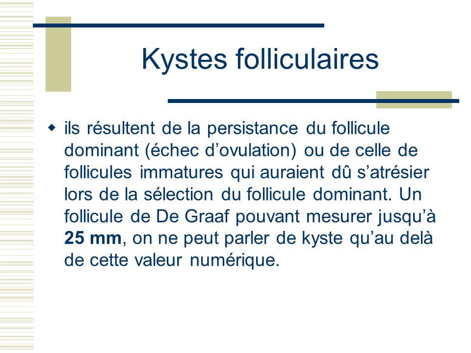 Kystes folliculaires ils résultent de la persistance du follicule dominant (échec dovulation) ou de celle de follicules immatures qui auraient dû satrésier lors de la sélection du follicule dominant.